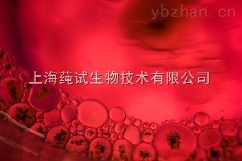 人非小细胞肺腺癌细胞;NCI-H2087培养